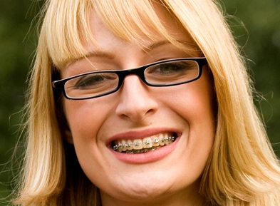 Adult Orthodontics: Is It Too Late To Get Braces?