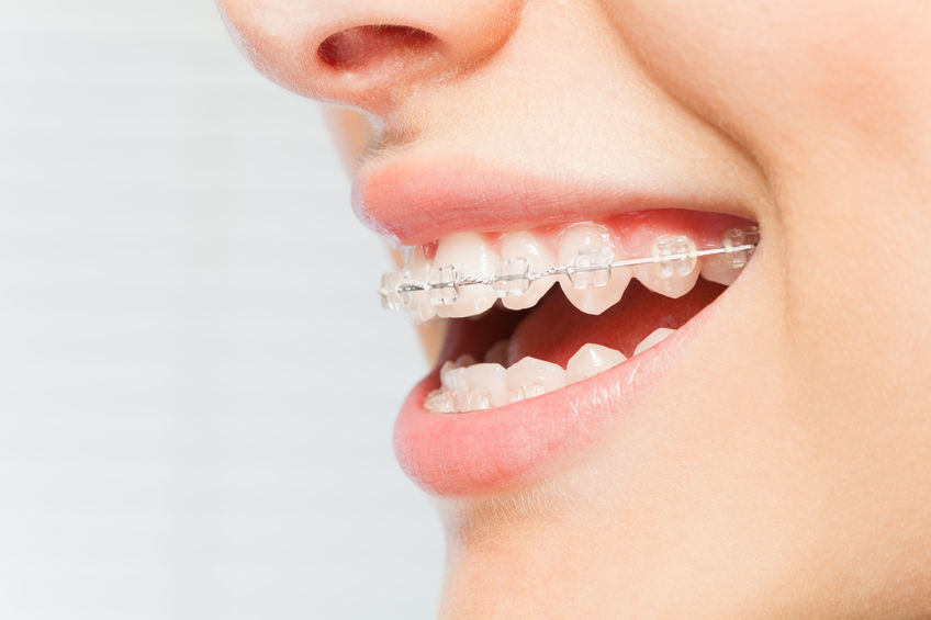 All You Need to Know About Damon Braces