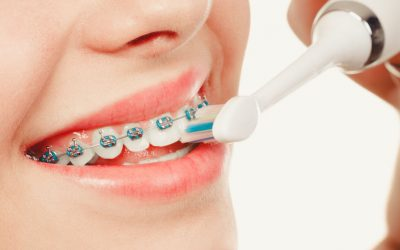 Brushing Tips for Patients with Braces