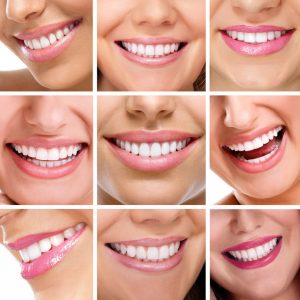 Healthy Teeth for a Beautiful Smile